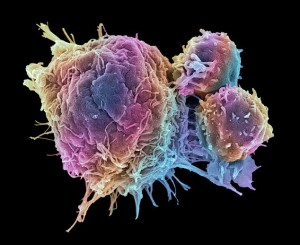 breast-cancer-cell-destroyed